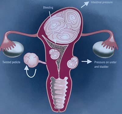 Lucía Vior Ginecóloga, mioma uterino, esquema general.