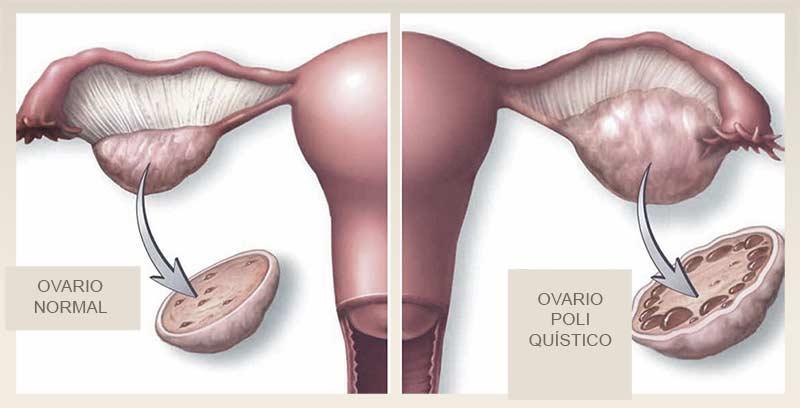 ovarios poliquisticos, imagen 0