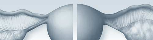 ovarios poliquisticos, imagen de portada
