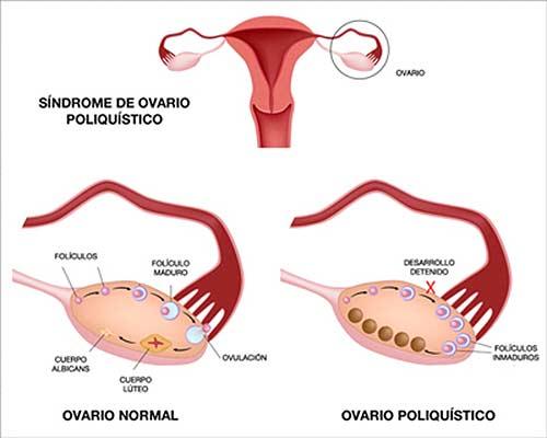 ovarios poliquisticos, imagen general.